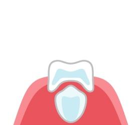 永久歯の根が作られ始め、乳歯の根が少しずつ溶かされます